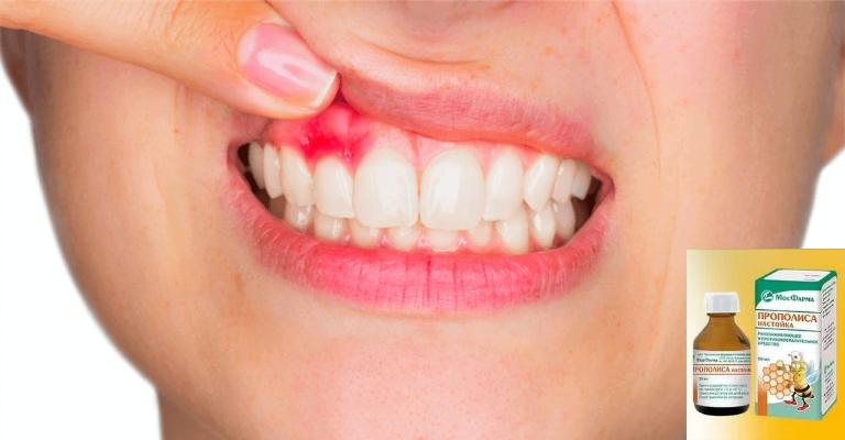 Прополисная настойка от кисты зуба