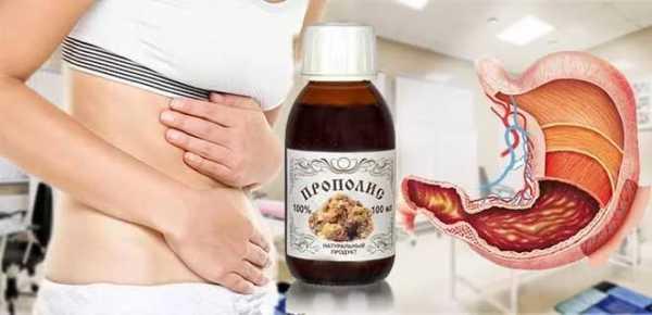 Прополис для лечения и профилактики болезней желудка и кишечника - методы лечения ЖКТ