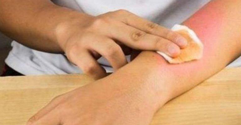 Прополис для лечения ссадин и ран