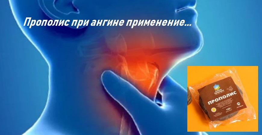 лечения ангины
